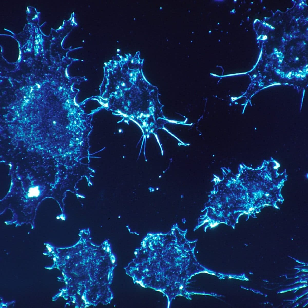 Study sheds light on how cells can sense cancer